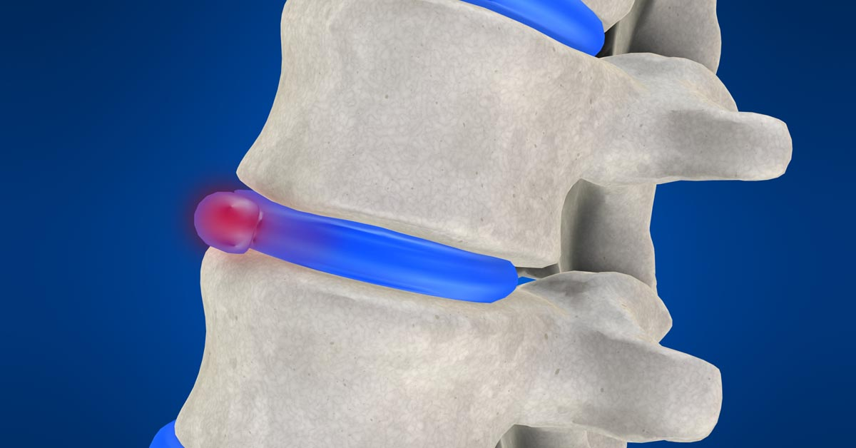 Spinal decompression therapy in Rutland